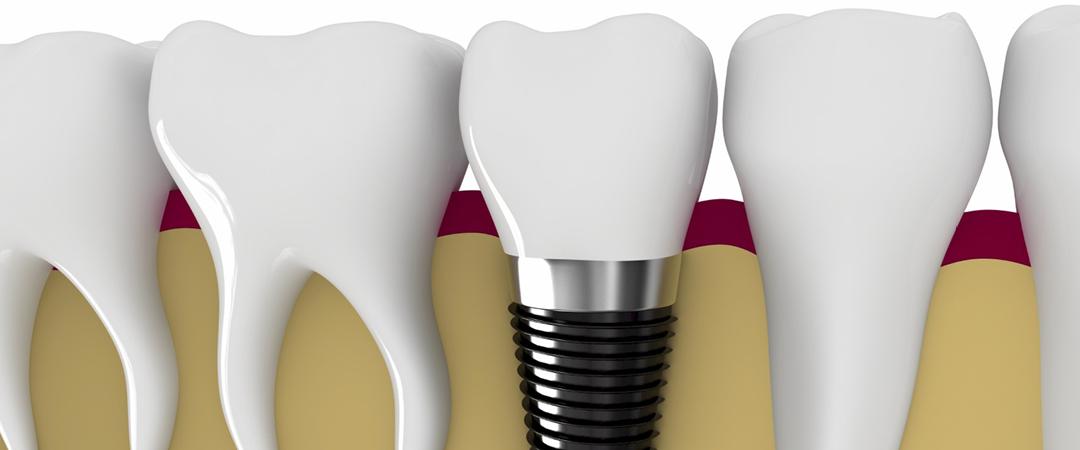 ath-implantat-2015
